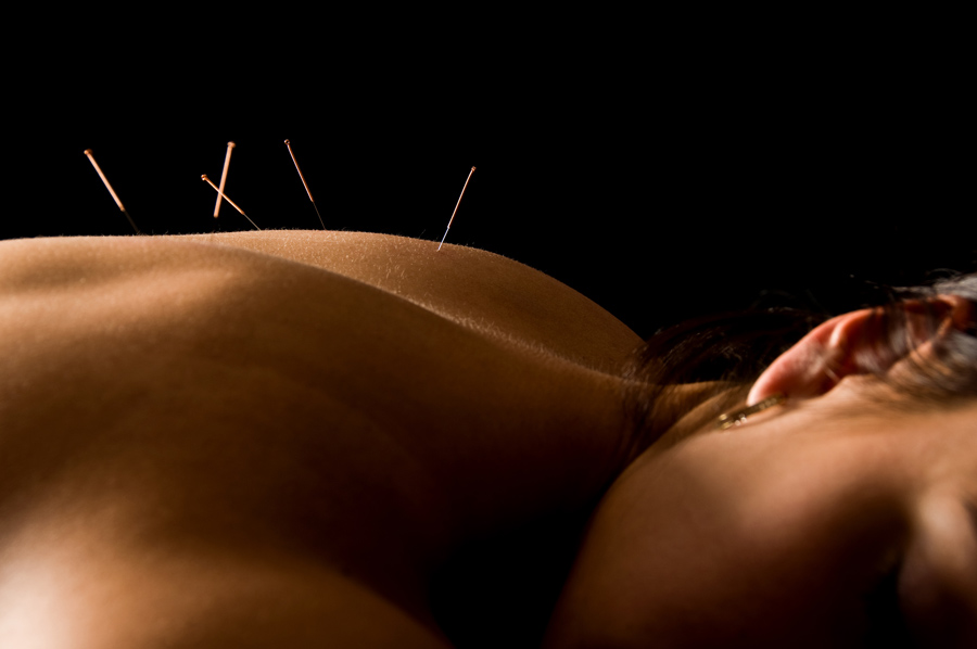 Chinese medicine: Acupuncture to relieve nausea